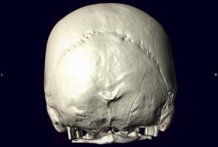 кт-черепа-сзади