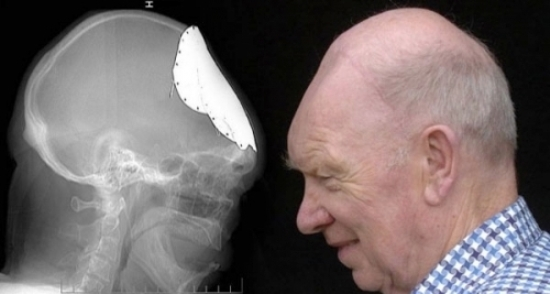 мужчина-с-пластиной-в-черепе