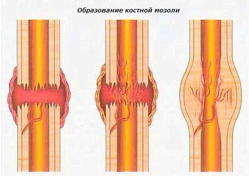 образование-костной-мозоли