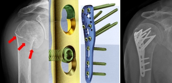 osteosintez-plechevoy-kosti