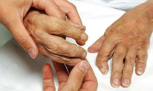 руки-больного-гипокальциемией