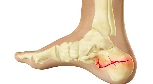 Перелом пятки (фото): реабилитация, симптомы, гипс