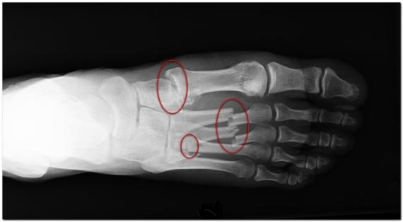 рентген-переломов-плюсневых-костей