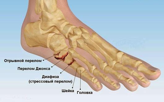 виды-переломов-плюсневых-костей