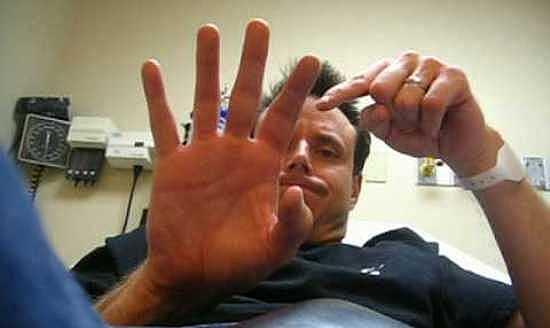 у-мужчины-перелом-пальца