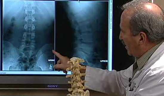 врач-демонстрирует-рентгенограмму