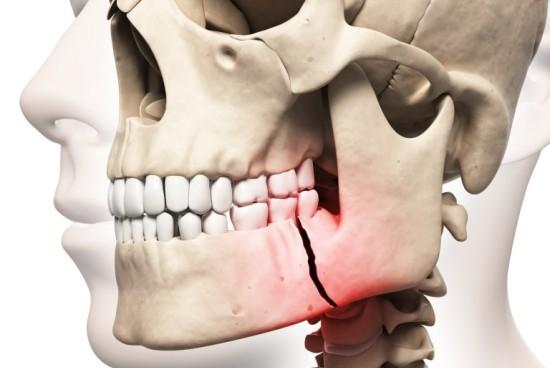 перелом-челюсти-рисунок