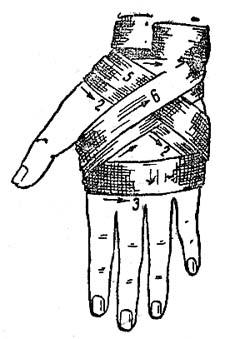 Восьмиобразная (крестообразная) повязка на кисть