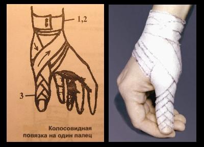 Колосовидная повязка на один палец кисти
