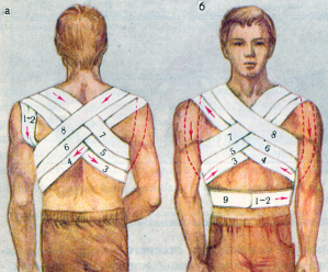 Как сделать повязку на грудь крестообразная видео