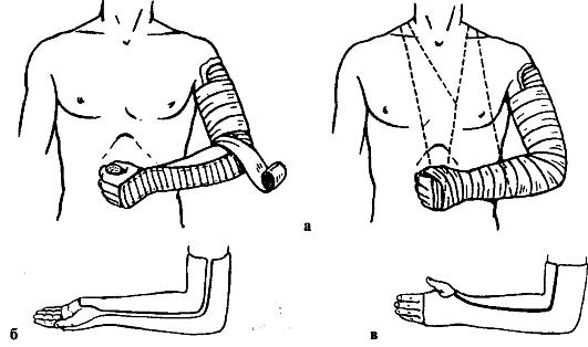 лонгета при переломе плеча.jpg1