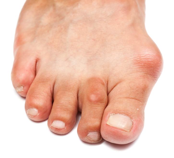 Бурсит стопы и голеностопного сустава1
