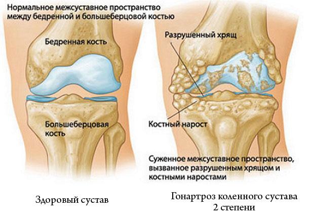 gonartroz-kolena-jpg2